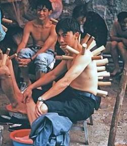 Sejarah Pengobatan Bekam di Wilayah Timur